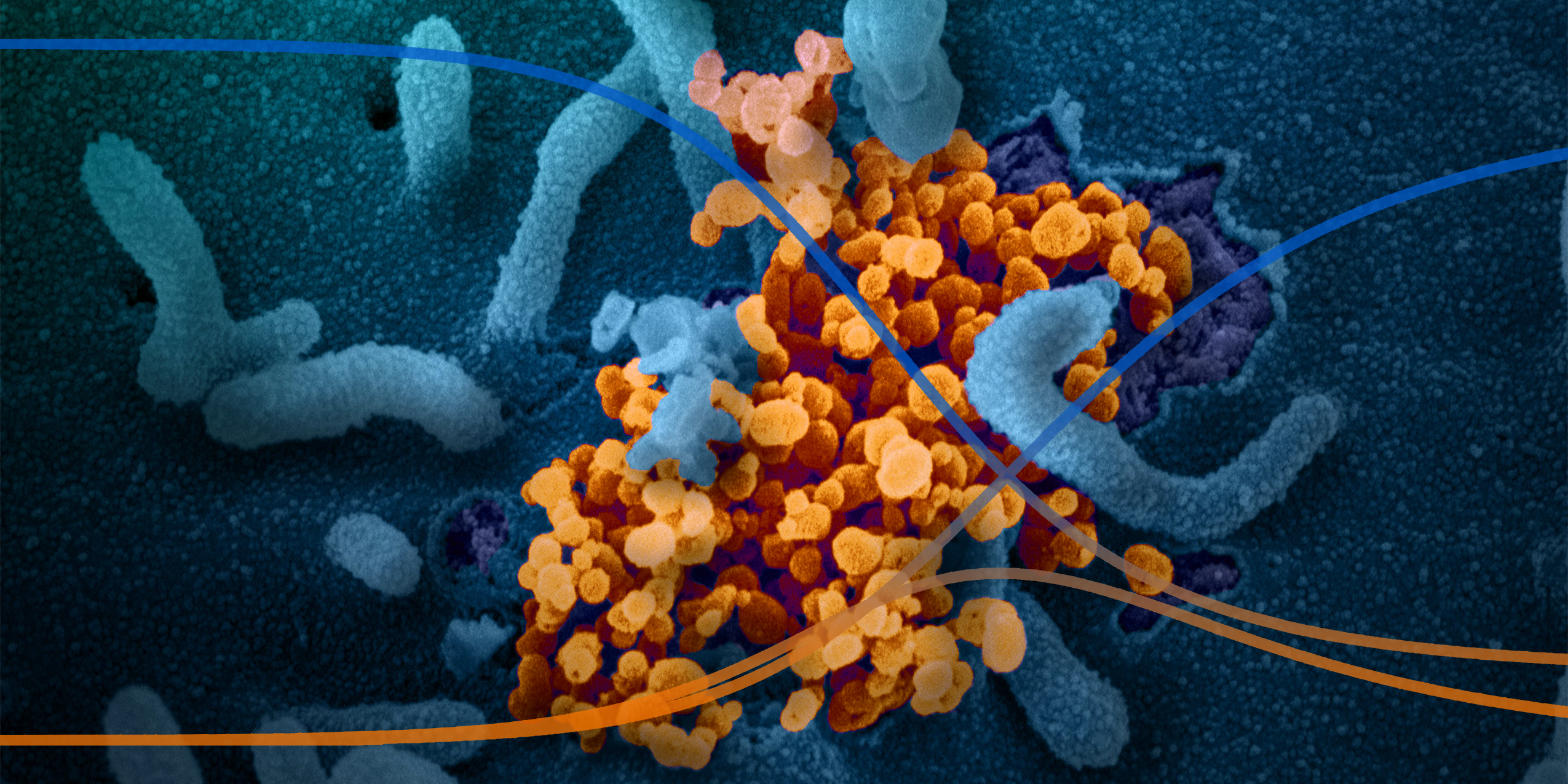 SIR Modeling on Azure: COVID-19 Hospital Impact Model for Epidemics